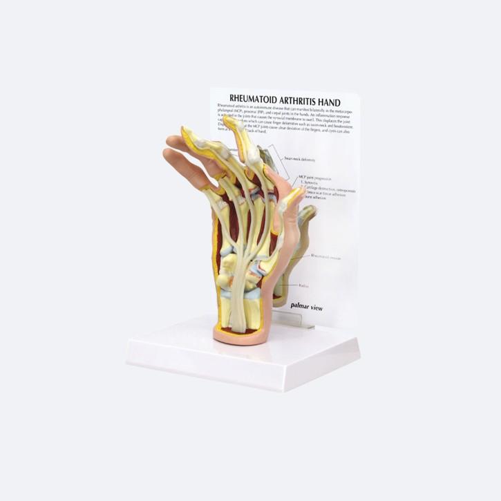 Gelenkrheumatismus Hand
